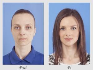 plastinės operacijos kaina